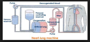 blood flows from right atrium into the machine, and back into the ascending aorta. From: Tracy Lu, https://prezi.com/avhhcs0buz5m/cardiac-devices/